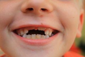 Kinderen kiezen wel gezonde producten, maar eten ze niet