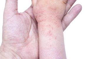 Relatie tussen geboortegewicht en allergische aandoeningen