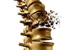 Mensen krijgen steeds eerder te maken met osteoporose